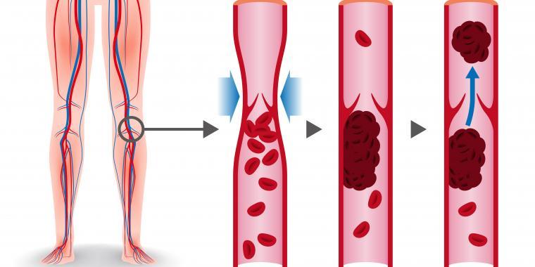 Risk för blodpropp på grund av åderbråck